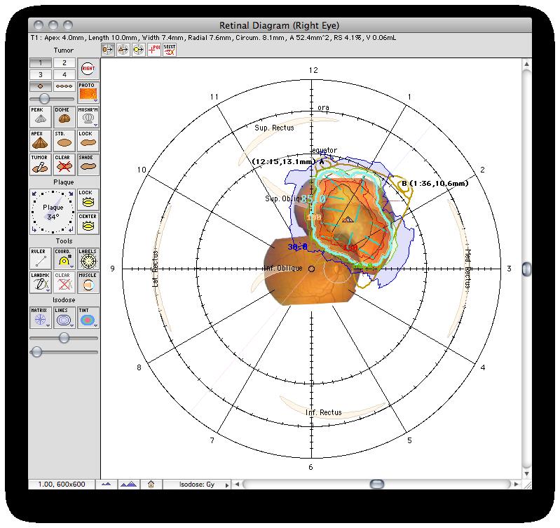 Retinal    Diagram    Window